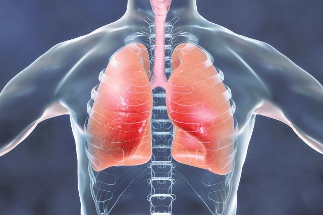 団体信用生命保険 肺・気管支系の病気